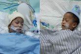 Gubernur Khofifah Terus Pantau Perkembangan Kondisi Bayi Kembar Siam Asal Kendari